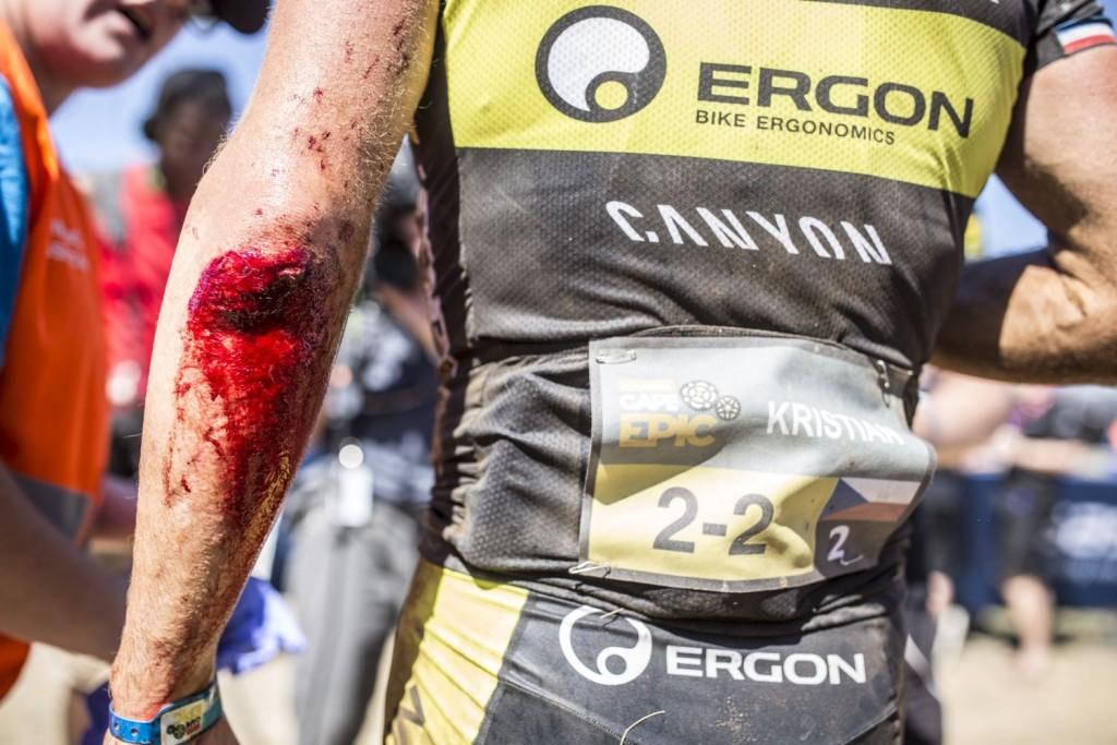 Kristian Hynek fue uno de los grandes damnificados de la 3ª etapa. Una fuerte caída le produjo serios daños físicos. Foto Nick Muzik/Cape Epic/SPORTZPICS