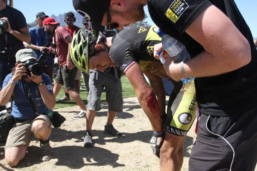 El dolor de Hynek. Lo tendrá difícil para continuar. La Absa Cape Epic no da margen a la recuperación. Foto Shaun Roy/Cape Epic/SPORTZPICS
