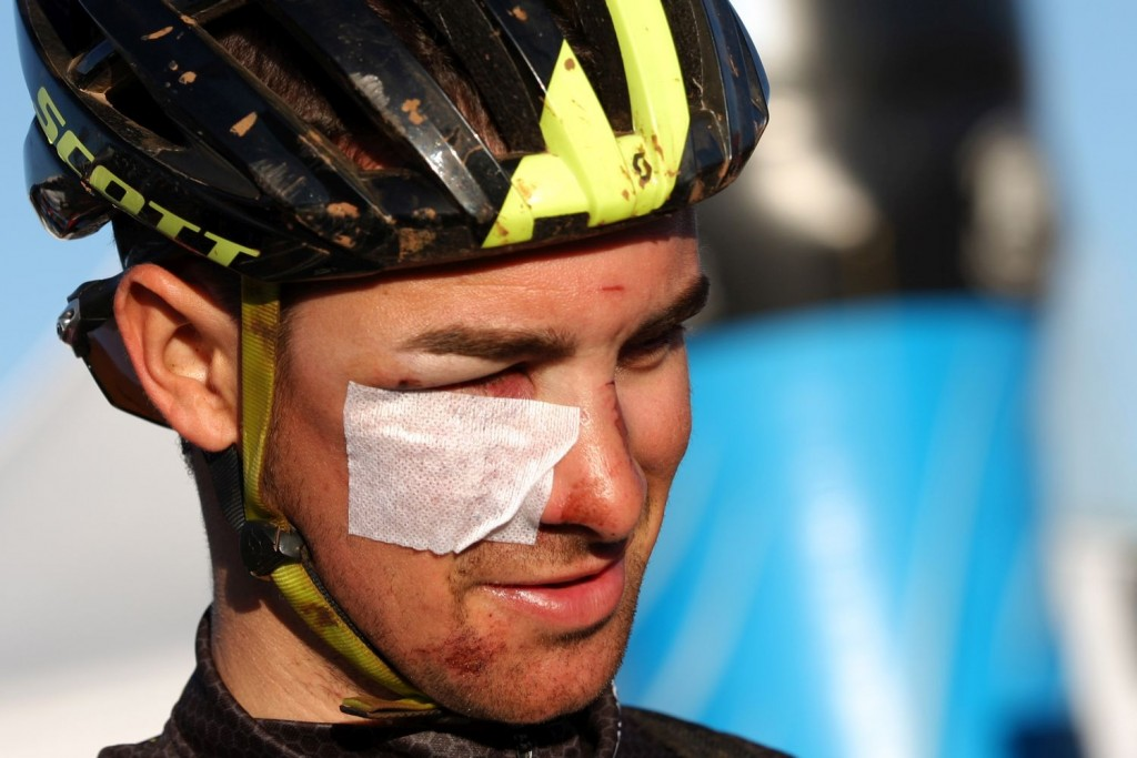 Francesc Girones, biker del Scott-Taymory, sufrió una aparatosa caída que dañó su rostro. Sigue en carrera a pesar de ello.
