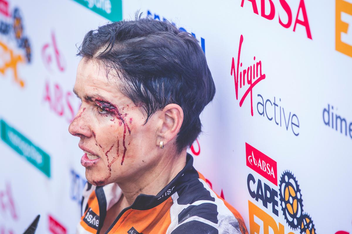 Las heridas de Sabine Spitz. Foto Ewald Sadie/Cape Epic/SPORTZPICS